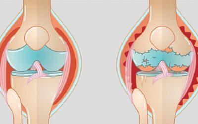 Gonarthrosis: when the knees lose their bearing